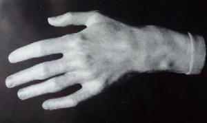 Main de Chopin d'après moulage sur nature